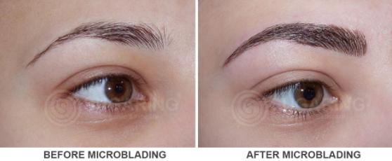 EyebrowMicroblading